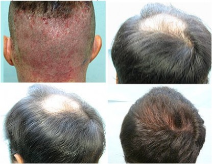 1500 FUE Graft Restored Receding Crown