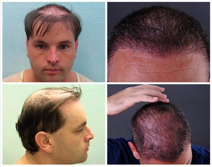 Hair Transplant Success with Body and Head Hair