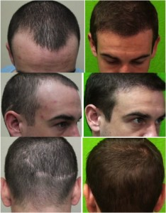 FUE hair transplant repair by Dr. Umar