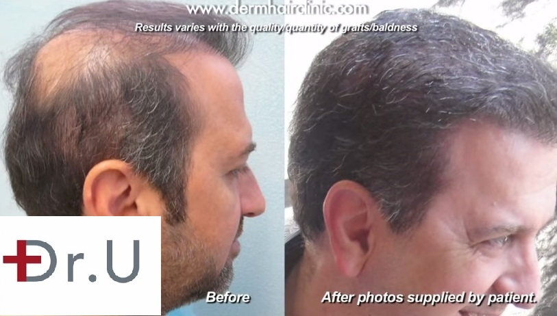 UGraft BHT Repair Results of a Dr U patient after surgery at his Los Angeles Clinic