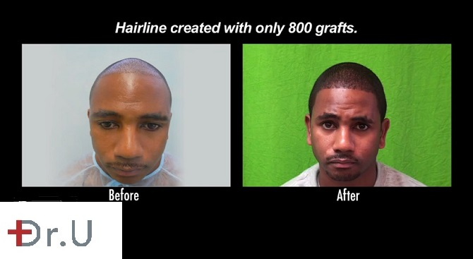 Patient's Hairline and Temples Before & After His FUE Restoration
