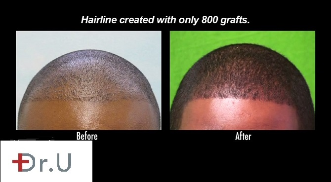 FUE Hairline Advancement & Coverage  FUE for African American Patient