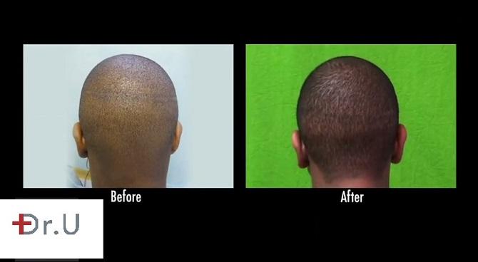 Linear Strip Scar Repair Black Male Patient