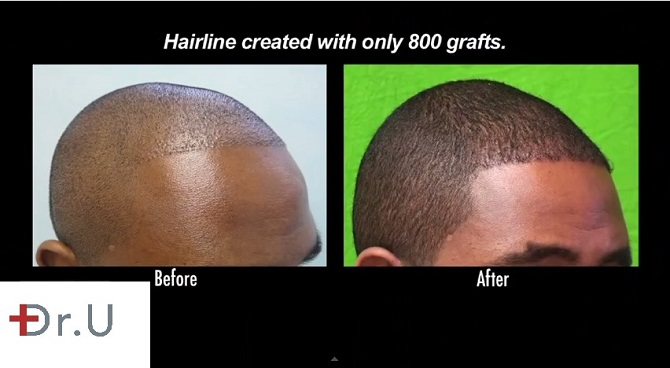 FUE Temple & Hairline Advancement African American