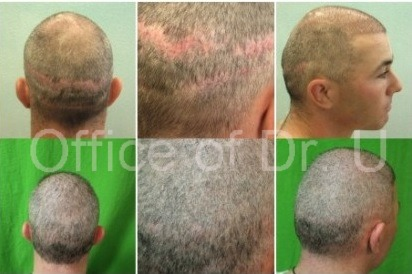 Strip surgery scar repair using UGraft follicular unit extraction at Dr U's Los Angeles clinic . After his procedure, he felt confident enough to wear a short buzz cut.