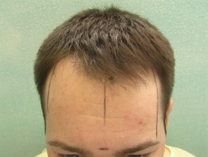 Hair Transplant Surgery |Thinning Hairline|Patient Photo