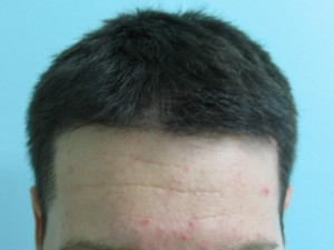 Hair Transplant - After Restoring Hairline With FUE