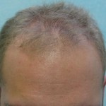 Restored Receding Hairline Using Graft