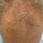 Receding Hairline Restored with 3500 FUE Graft
