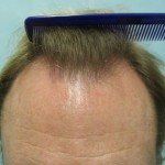 Before a Crown Hair Transplant