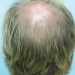 Back of Head Before Crown Hair Transplant