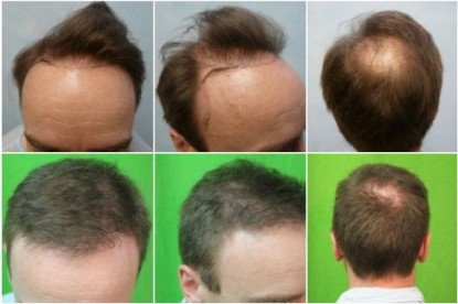 Receding Hairline Corrected