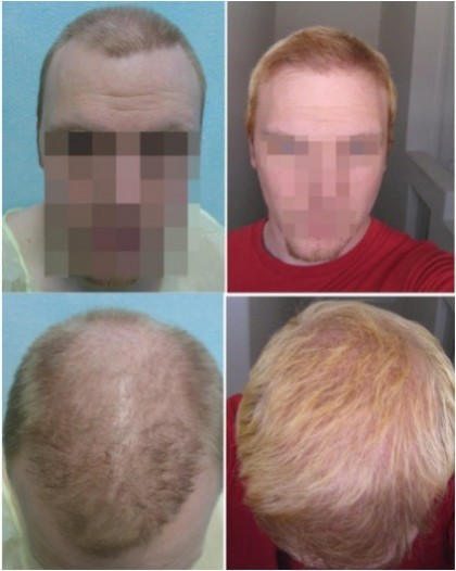 FUE Hair Restoration with 6100 Grafts to Achieve Full Hair
