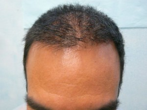 Natural Looking Hairline
