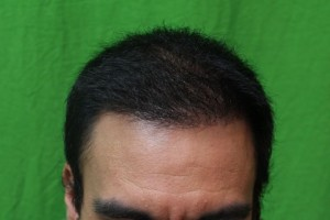 Before and After Photo of FUE Hair Restoration with Natural Hairline
