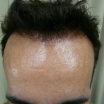 After Hairline Transplant Success with FUE