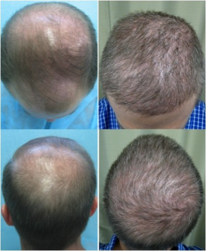 Before and After of BHT Restored Patients
