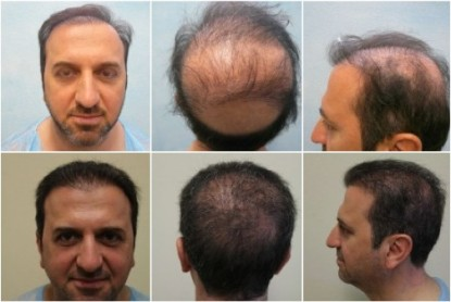 Using Body Hair Transplant for Severe Baldness