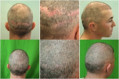 Strip Scar Before and After with FUE Technology
