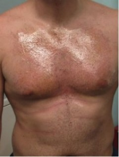 "Example of a chest hair harvest soon after an ""UGraft follicular unit extraction in Dr Umar' Los Angeles Clinic"