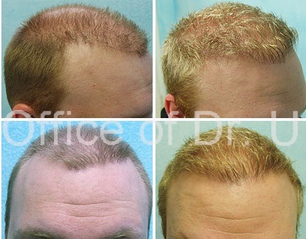 After proper planning, patients UGraft FUE Hair transplant repair of the hairline results in a more refined soft and symmetrical result