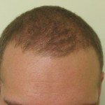 Before and After Picture of Restored Receding Hairline with FUE 3500 Graft
