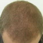 FUE 3500 Graft Restored Receding Hairline