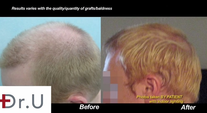 Before and After Profile View| Body Hair Transplant Results