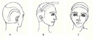 Figure 2: A) Shows where the temporoparieto-occipital flap is cut. B) Shows the excised flap. C) Shows the final placement of the flap.