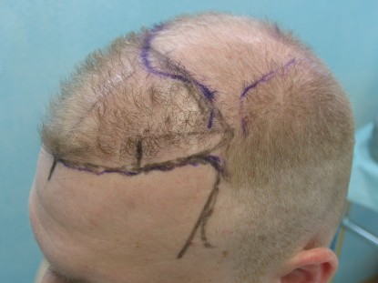 UGraft FUE hair transplant Surgical Planning