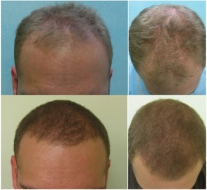 FUE Hair Transplant Repair| Successful Patient Repair