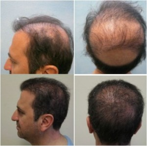 Advanced FUE| Beard Hair Grafts| Hair Transplant Repair Results