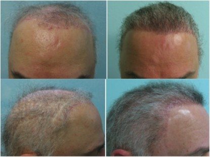 Front and side views of the patient before and after body hair transplant