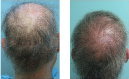 Rear views of before and after this patient's body hair transplant.