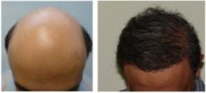 Facial Hair to Head Transplant|Beard Hair Grafts|Norwood 7