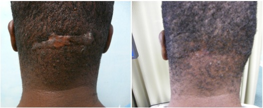Permalink to Treatment For Acne Keloidalis Nuchae