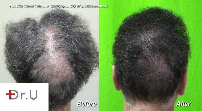 Slot deformity of the crown caused by scalp reductio, before and after UGraft hair transplant repair by Dr U