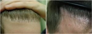 "Hair transplant repair of ""doll's hair"" along the hairline."