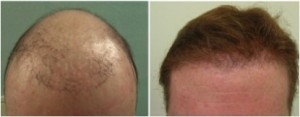 Hair transplant repair of punch scarring.