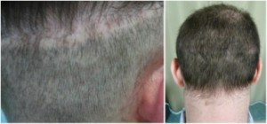 Hair transplant repair of a strip scar.