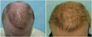 Hair transplant repair of asymmetry.