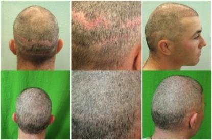 Hair Transplant Cost 6