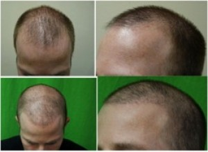 Sample Patient A: real patient of DermHair Clinic