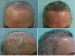 Sample Patient C: real patient of DermHair Clinic