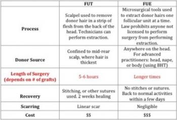 Choosing the best hair transplant method|Strip Surgery|FUE