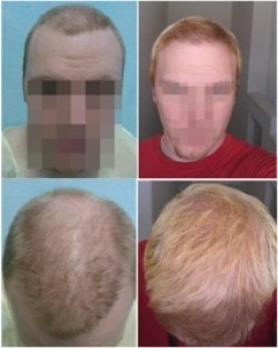 Hair Transplant at a Young Age