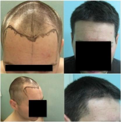 Celebrity Hair Transplant Dermhair Clinic Los Angeles 310 318 1500