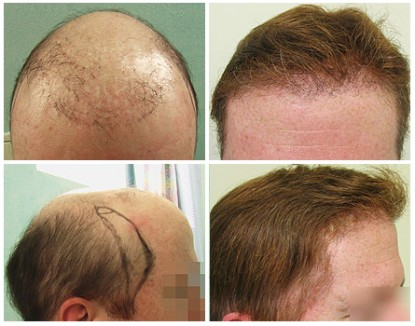Beard hair used to create hairline that will disguise the use of a hairpiece.