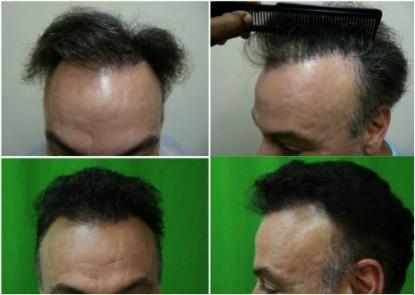 Beard hair transplant to correct receding hairline and temple points.