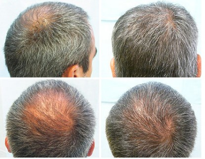 Rogaine Hair Transplant Beard Hair Transplant to Fill